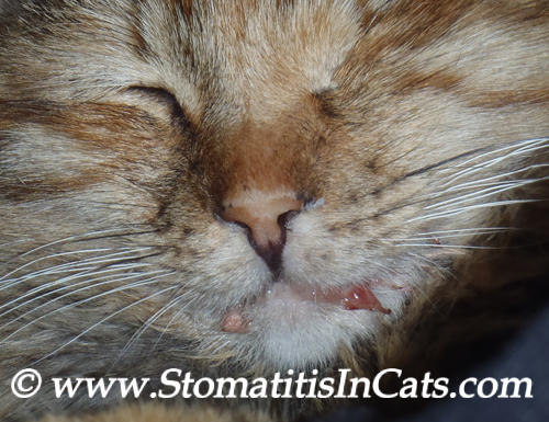 Symptoms of Stomatitis