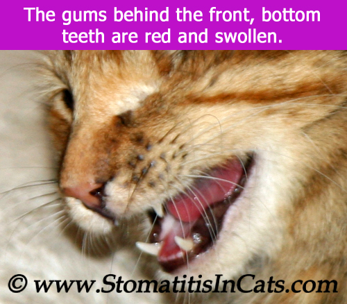 Stomatitis seen behind the front teeth